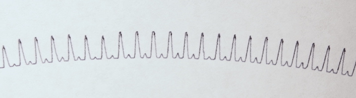 pulsetrace